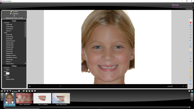 Customizeable pediatric dental and orthodontic animations
